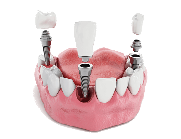 Smiles By Rizzo-Gerald Rizzo DDS-Carlstadt Dentist-dental implants