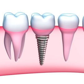 Smiles By Rizzo-Gerald Rizzo DDS-Carlstadt Dentist-implant