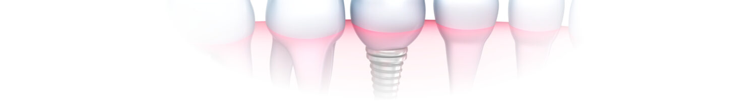 Dental Implants in Carlstadt, NJ