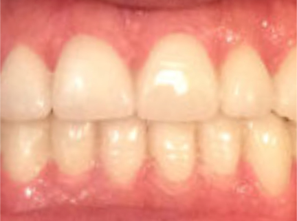 After-Veneers Before and After