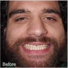 Before-Veneers Before and After